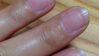 健康爪を育てよう~ドクターネイル ディープセラムで弱った爪を補修しよう!②1週間後