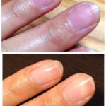 自宅でセルフ深爪矯正!爪が小さくて悩んでいる方必見「深爪になる理由」